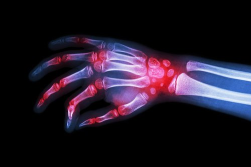 No Wrist Damage with Early JIA Treatment Targeting Inactive Disease, Trial Finds